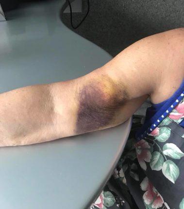 Гематома розміром з Америку: водій франківської маршрутки травмував пенсіонерці руку (фотофакт)