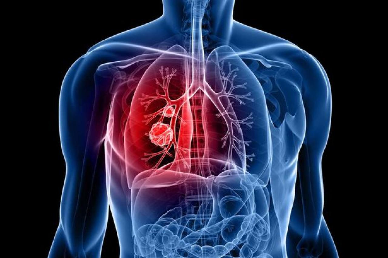 У Коломиї не найкраща ситуація із хворюваністю на туберкульоз