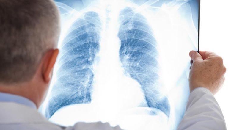 """Ковідна"""" лікарня у Калуші отримає корейський рентген-апарат вартістю майже  2 млн. грн. - Місто"""
